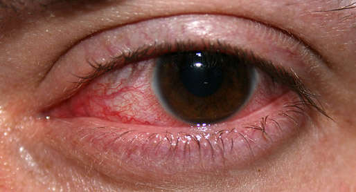 Common Eye Diseases and Prevention Methods